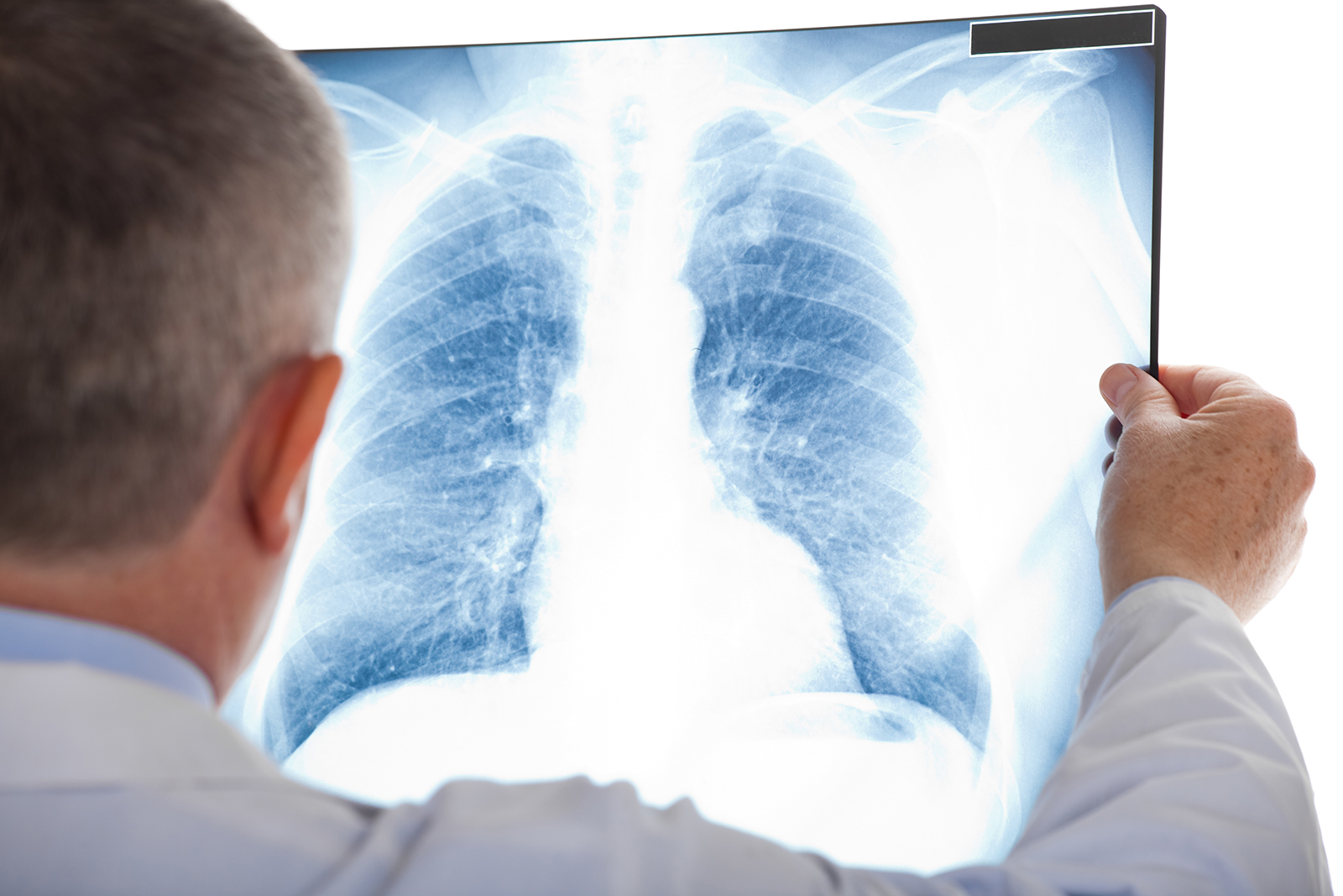 doctor reviewing x-ray of patients lung
